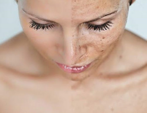 Pigmentation problem – how to fight it